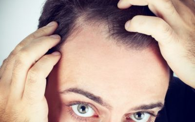 Causas de la caída de cabello masculino