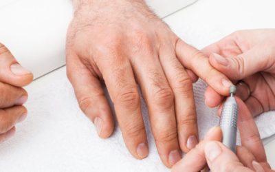 Cuidado de las manos de un hombre