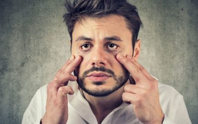 Combatir las ojeras masculinas